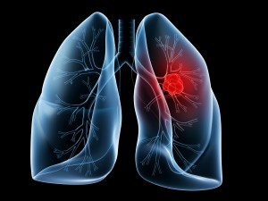 image of lung cancer