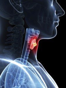 3d rendered illustration of a thyroid cancer