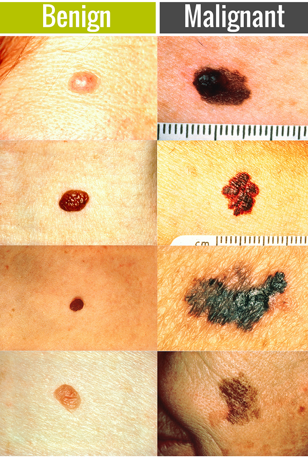 Skin Cancer Misdiagnosis Claims Bolt Burdon Kemp Solicitors