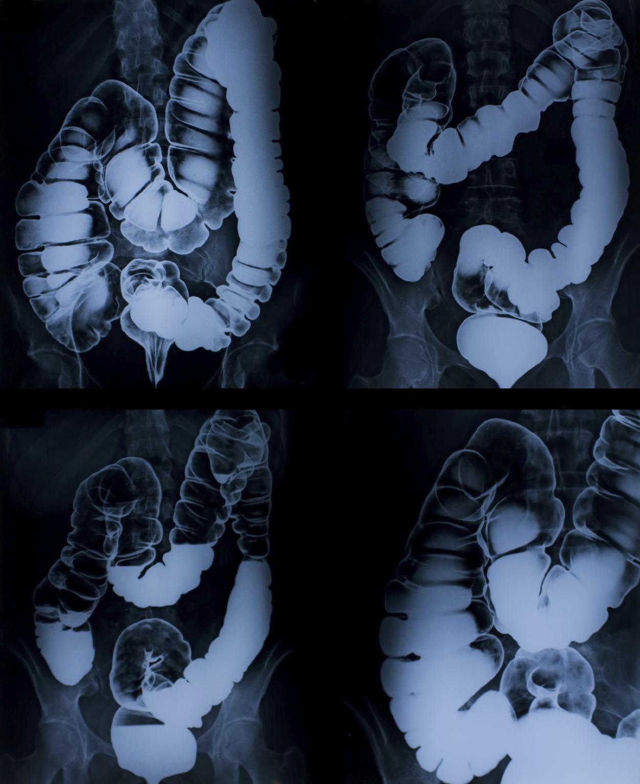 image of x-ray colon