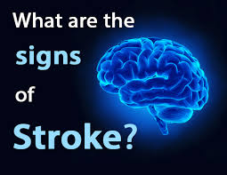 image of stroke information
